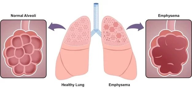 Emphysema | Causes, complications and treatment