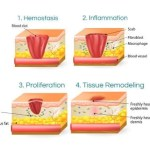 What are the factors that influence wound healing