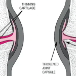 Osteoarthritis (OA) | Causes and management