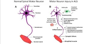 What is ALS (amyotrophic lateral sclerosis)