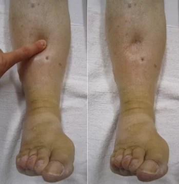 Peripheral Edema causes and treatment