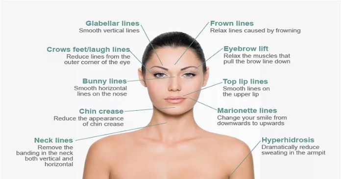 Cosmetic Surgery For Frown Lines On Face
