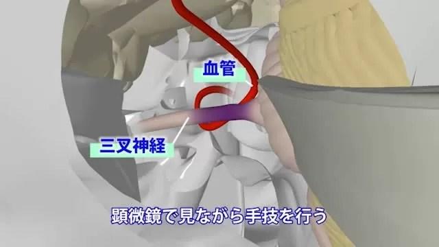 三叉神経痛開頭神経血管減圧術