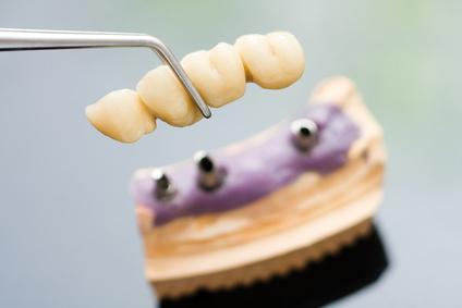 protezy zębów Bolesławiec