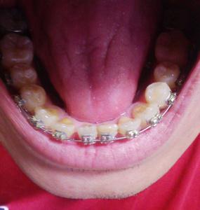 前歯が並んだ