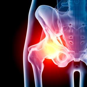 fractura-cadera