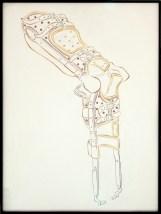 appareil orthopédique