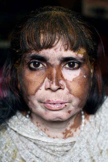 Saida, a tannery worker, in her home in the Indian city of Kanpur. She is one of many workers and locals who suffer from serious skin conditions, believed to have been brought about by having contact with toxic waste water from local tanneries.