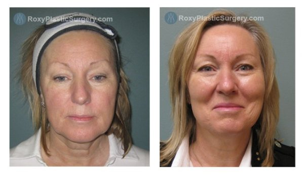 Facelift Before and After in Columbus Ohio - ROXY Plastic ...