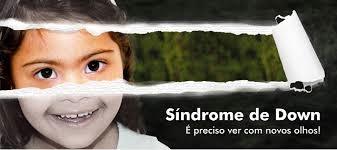 Oração de uma criança com Síndrome de Down