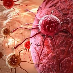 EUA aprovam terapia inédita que mudará o tratamento do câncer