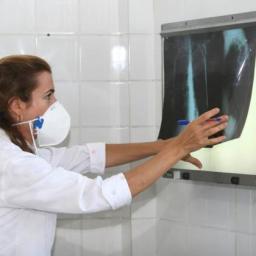 Bolsa Família pode ter reduzido em mais de 20% o índice de tuberculose