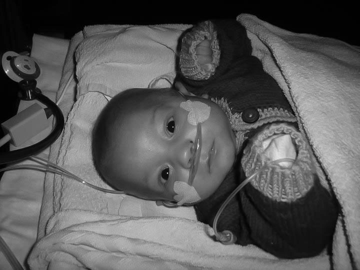 andreas-premature-ne-a-4-mois-et-demi-de-grossesse-7