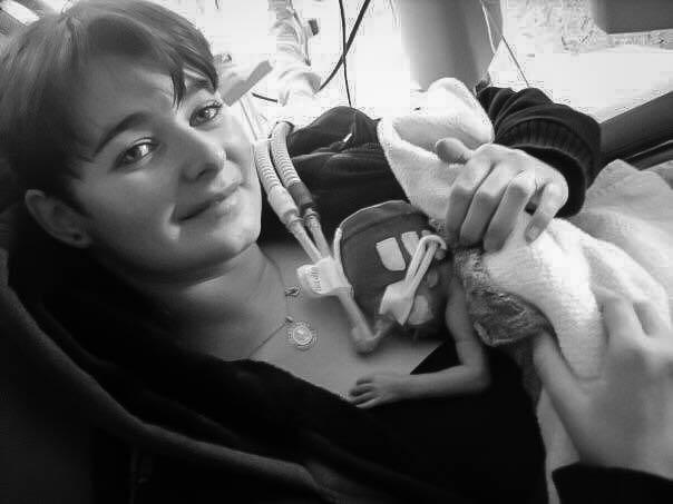 prématurité 4-mois-et-demi-de-grossesse