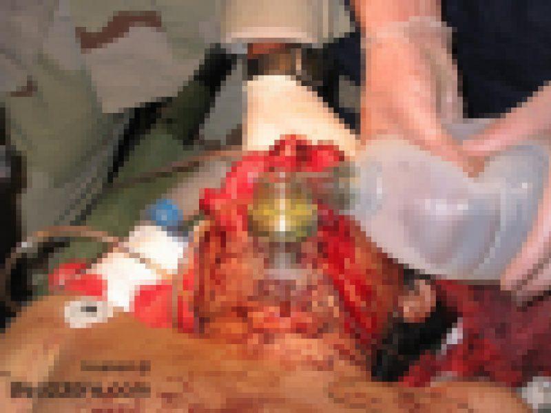 【閲覧注意】 顔面を撃たれた男性の手術風景。