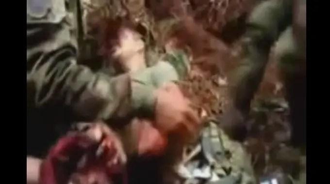 【閲覧注意】 地雷を踏んだ兵士を救助中。