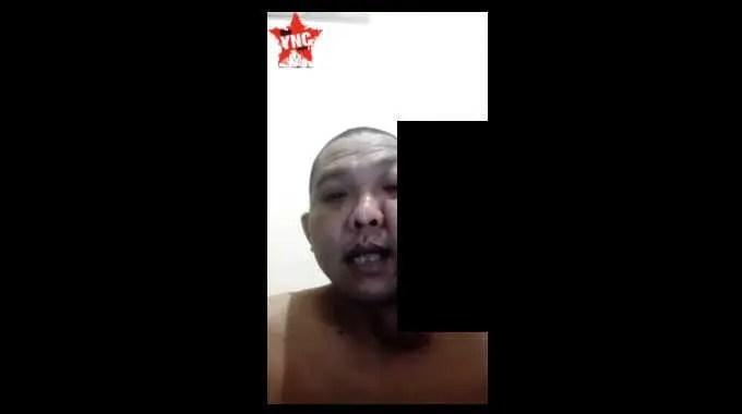 【閲覧注意】 うわっ! 何の病気なのかデカい腫瘍が顔面にできた男性。