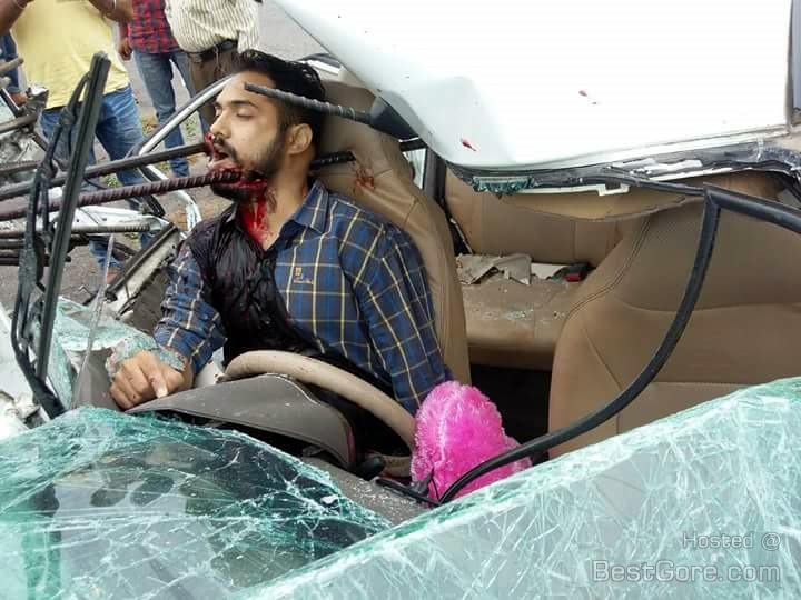 【閲覧注意】 チュニジアで起きた交通事故で鉄筋が刺さっている!