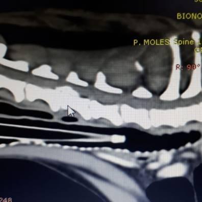 Hernia cervical