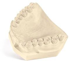 TecStone FL Dental Gypsum