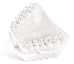 Fastone Dental Gypsum