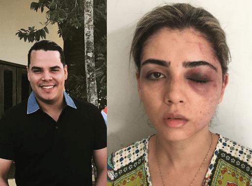 lucio e mulher agredida - COVARDIA: Irmão do prefeito de Pinheiro, quase mata a ex-mulher com uma surra - minuto barra