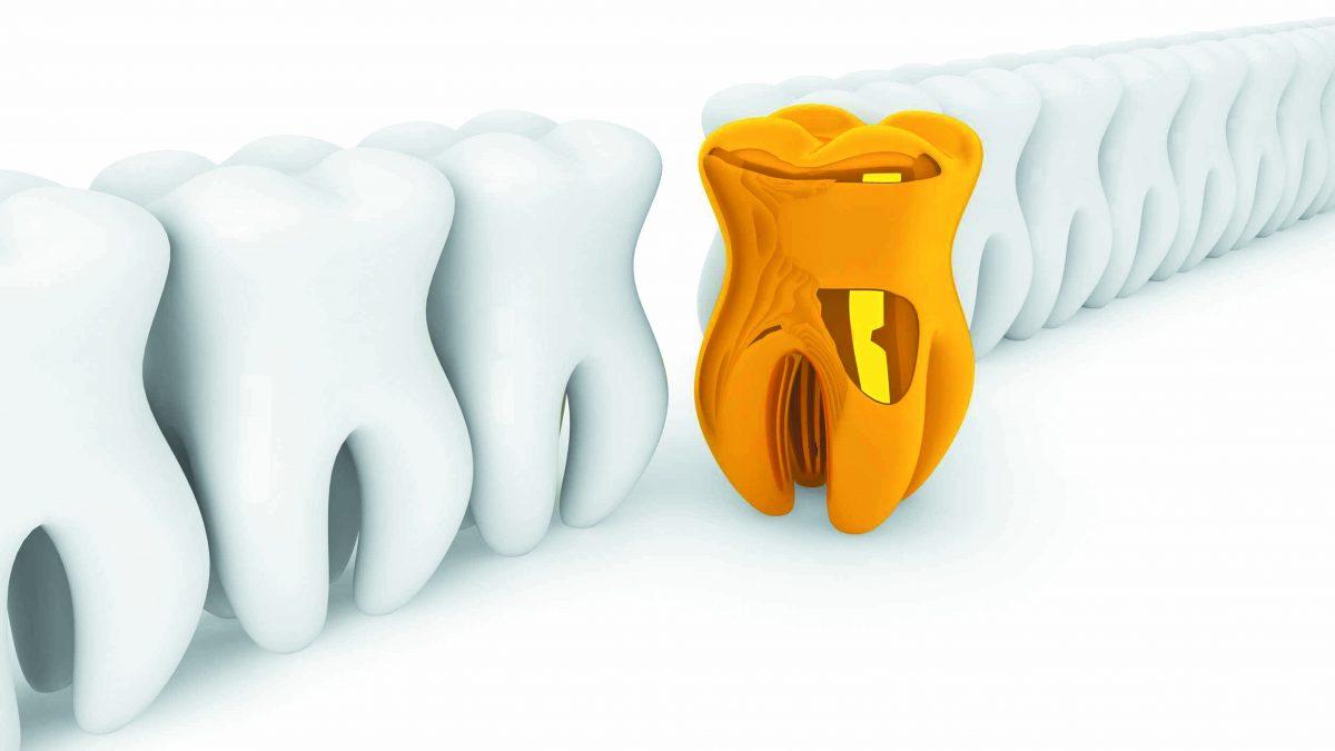 Gáspár Dental fogpótlások implantációk