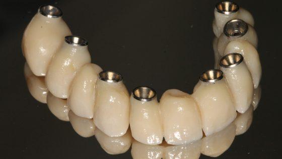Implantátum műgyökér fogsor körhíd Dr Tóth-Gáspár Máté Gáspár Dental Gaspar Medical Center