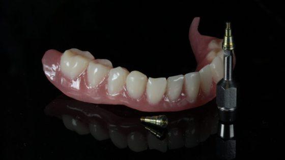 kivehető fogpótlás Gáspár Dental fogsor
