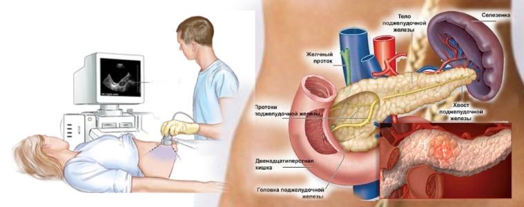 Ultraäänitutkimus tällä tasolla antaa asiantuntijoille mahdollisuuden arvioida suurilla tarkkuusparametreilla elimiä vatsan ontelossa sijaitsevaan lisädiagnostiikkaan.