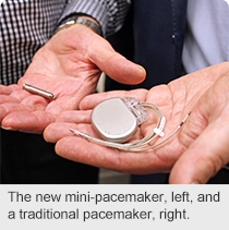 ns-mini-pacemaker