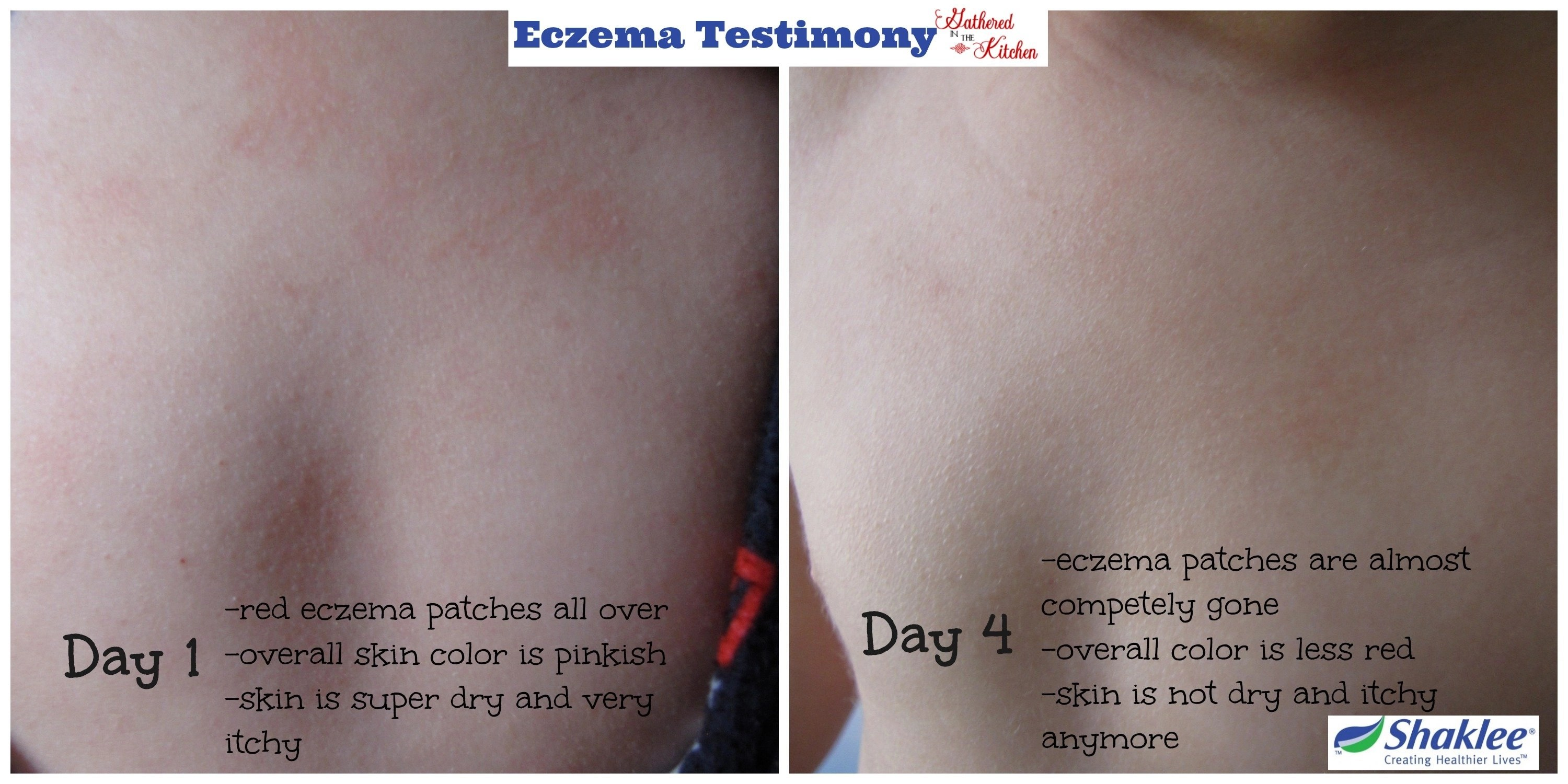 Shaklee Eczema Testimony: How To Heal Eczema Naturally