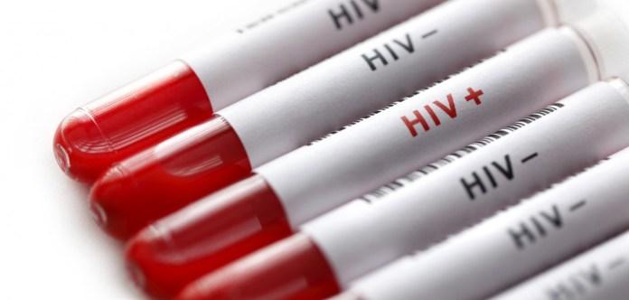 Johnson & Johnson inicia primeiro estudo da vacina 'global' contra o HIV