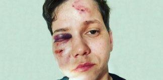 Karol Eller foi agredida na orla da Barra da Tijuca (Foto: Reprodução)