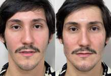 Entenda a harmonização facial do TikToker Vittor Fernando