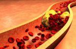 8 Cara Membersihkan Plak pada Pembuluh Darah