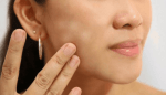 Penyebab Bercak Putih pada Wajah dan Cara Menghilangkannya