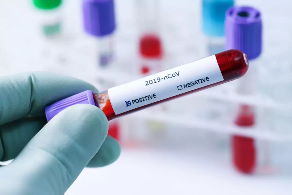 blood sample tube in hand with positive coronavirus test