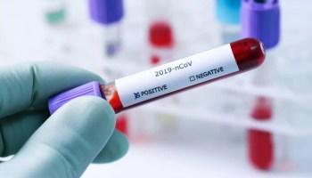 coviddddddddddd Numărul oltenilor infectați cu SARS-CoV-2 a ajuns la 13.826 de la începutul epidemiei