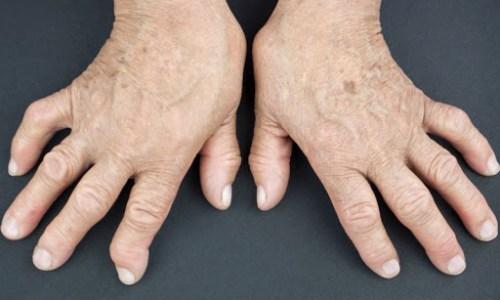 Çka është Artriti Reumatoid? Shkaqet, shenjat, simptomat