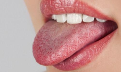 Pse dhe si nevojitet ta pastrojmë gjuhën për të shpëtuar nga problemet me shëndetin