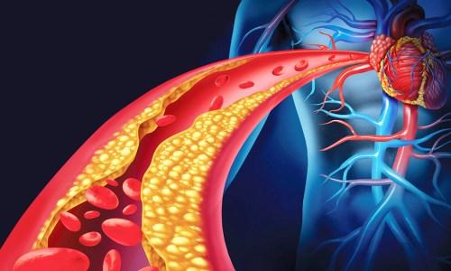 Nivelet e Kolesterolit Ulen Në Verë Dhe Rriten Në Dimër- Kujdesi Që Ju nevojitet
