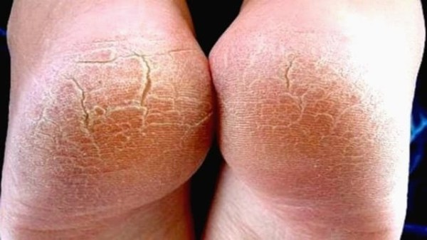 Гиперкератоз стоп: причины и симптомы гиперкератоза ног ...