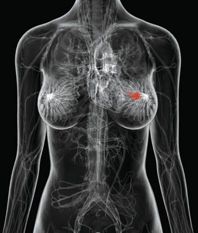 Image illustrating breasts