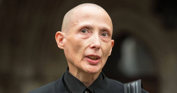 A bald headed person in a black shirt