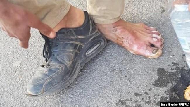 Rane na nogama od višekilometarskog pješačenja