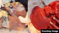 On the left, a non-perfused liver, on the right, a liver treated with the new machine. (Image: Zurich University Hospital / beamue)