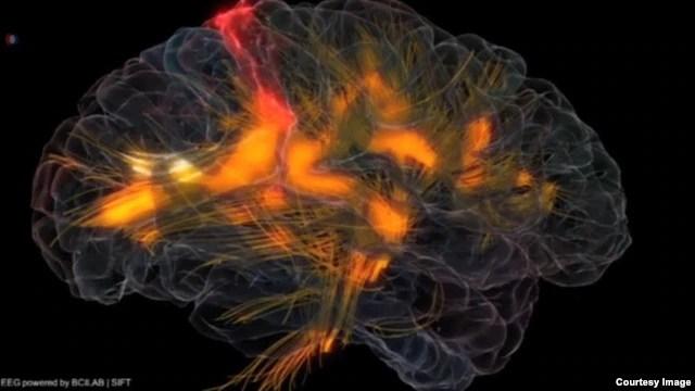 Não của người nói hai thứ tiếng làm việc hiệu quả hơn, bà cho biết, bởi vì họ có khả năng kiểm soát mang tính áp chế tốt hơn, liên tục lọc ra những từ không liên quan.