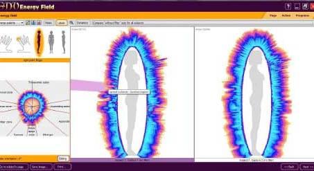 bio-well human energy field scan