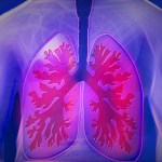 Do you know about LUNGS